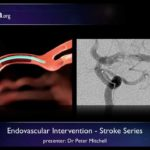 Stroke: Endovascular management of ischaemic stroke – radiology video tutorial