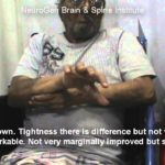 Stem Cell Therapy Treatment for Stroke by Dr Alok Sharma, Mumbai, India.