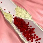 Herbs to Clear Blocked Arteries