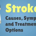 Stroke – Causes, Symptoms and Treatment Options