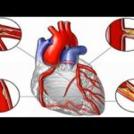 Fat and Cholesterol do not cause Heart Disease
