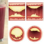 10 Foods That Unclog Arteries Naturally And Protect Against Heart Attack