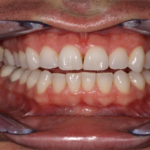 Avoid These Foods If You Want To Have Beautiful Teeth