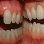 How to Grow Your Own Teeth In Just 9 Weeks