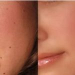 Remove Warts and Skin Tags In 5 Days With One Common Ingredient