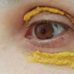 She Applied Turmeric Around Her Eyes. 10 Minutes Later UNBELIEVABLE MIRACLE!