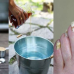 This Super Easy 2-Ingredient Way Will Get Rid of Nail Fungus Forever