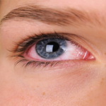 Conjunctivitis: Answers to the 6 FAQs