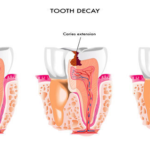 Everything Is Curable In A Natural Way: Get Rid Of Caries Alone, Without a Dentist