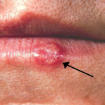 The Natural Cure for Herpes