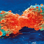 WARNING: 20 cancer symptoms you must not ignore