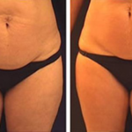 The Secret Recipe for a Drink That Quickly Melt Cellulite