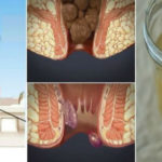 Treating Hemorrhoids at Home With One Ingredient From Your Kitchen You Will be Cured in 24 Hours !
