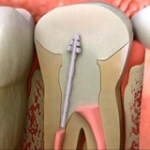 How Root Canals Severely Affect Your Health